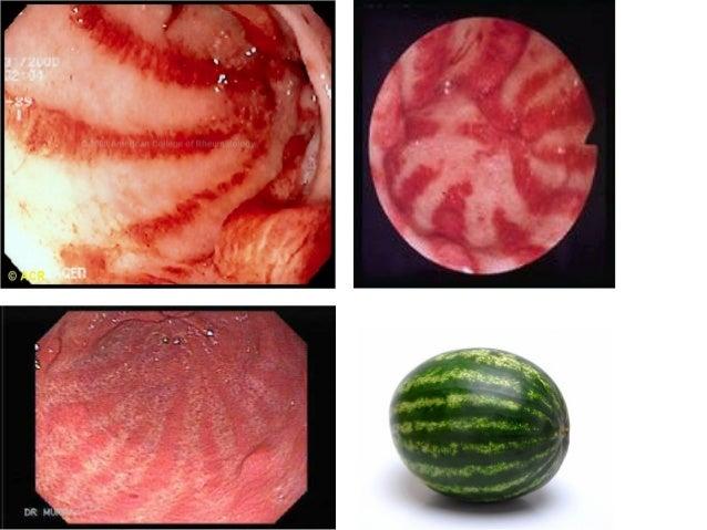 Image result for scleroderma gut
