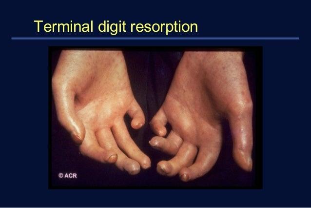 Terminal digit resorption