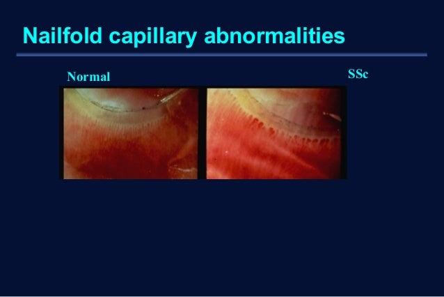 Nailfold capillary abnormalities  Normal SSc