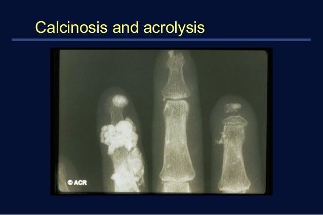Calcinosis and acrolysis