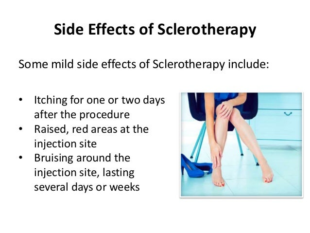 What is Sclerotherapy? Is It the Right Vein Treatment For Me?