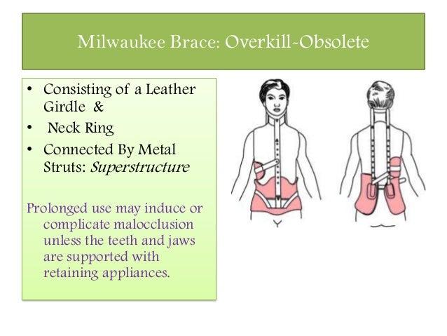 Scoliosis bracing