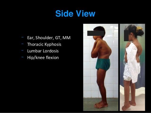 Scoliosis examination