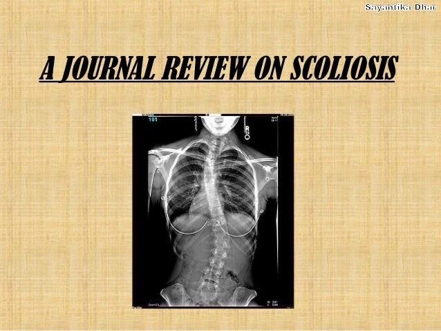 A JOURNAL REVIEW ON SCOLIOSIS