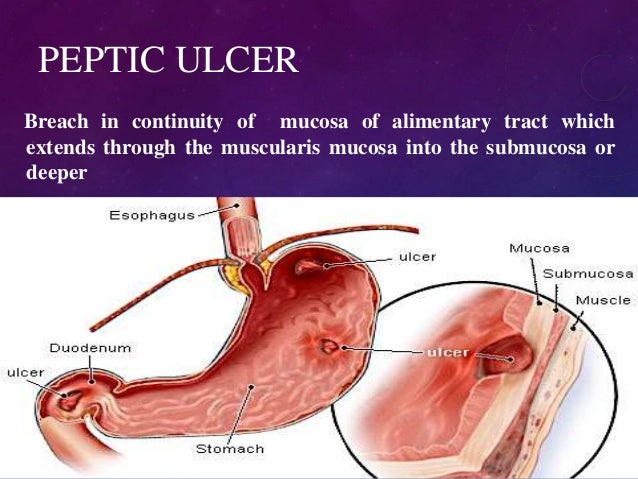 Ulcer Medicine Carafate