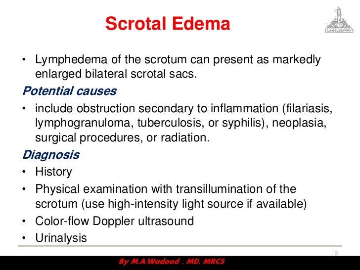 scrotal disorders, Skeleton