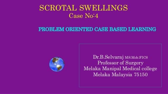 SCROTAL SWELLINGS Case No:4 PROBLEM ORIENTED CASE BASED LEARNING Dr.B.Selvaraj MS;Mch;FICS Professor of Surgery Melaka Man...