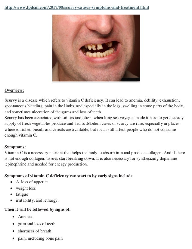 Scurvy Causes Symptoms And Treatment