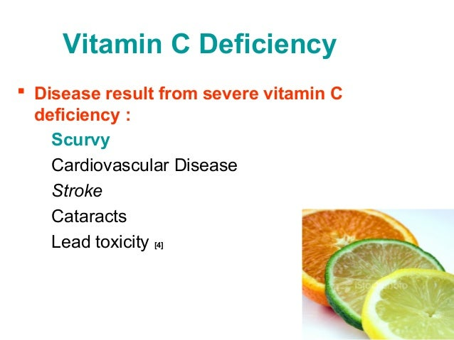 vitamin c and scurvy A brief history of vitamin c and its deficiency, scurvy by harri hemilä scurvy before james lind james lind's treatise 1753 scurvy as a deficiency of a nutrient land scurvy and pediatric scurvy animal model for scurvy identification and synthesis of vitamin c scurvy and the physiological functions of vitamin c table 1.