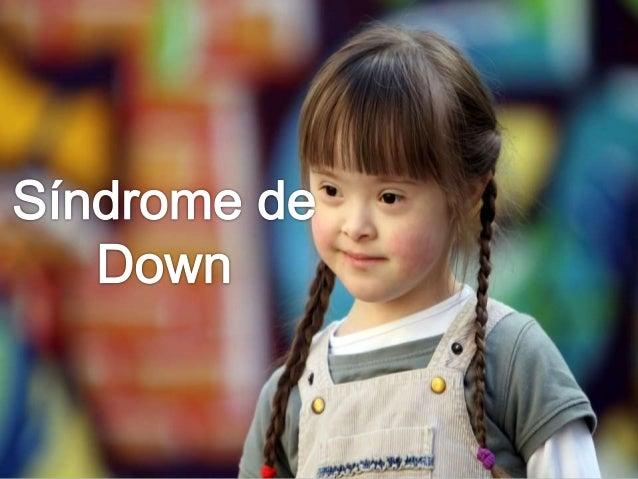 Resultado de imagem para síndrome de down