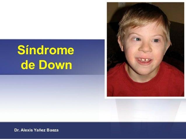 Síndrome de Down Dr. Alexis Yañez Baeza