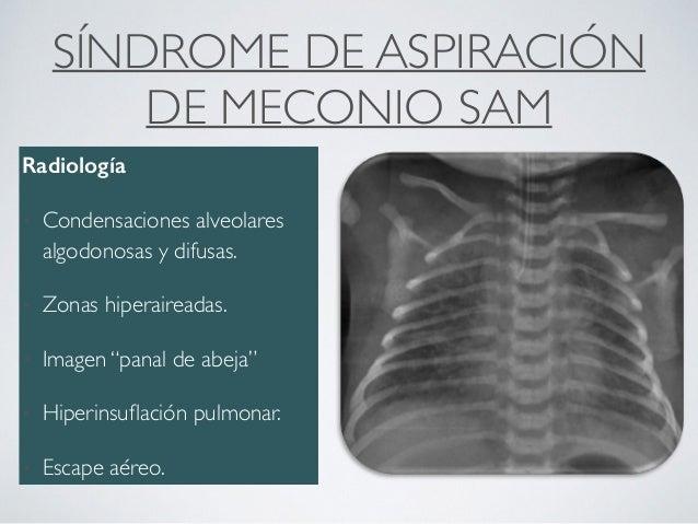 Sd dificultad respiratoria aguda RN