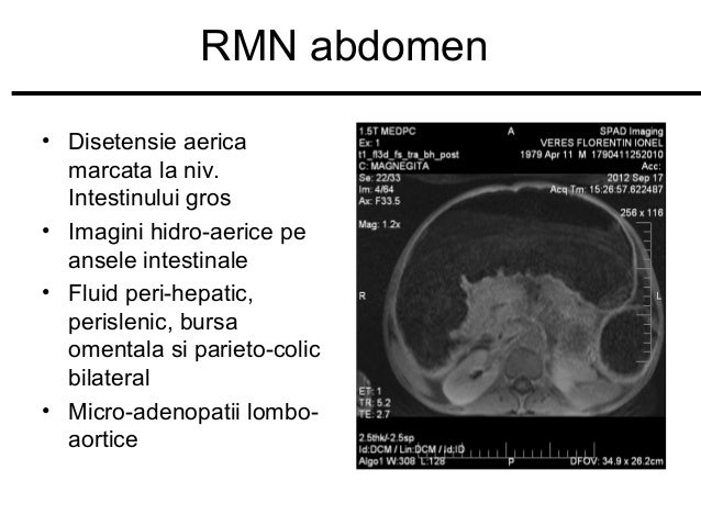 RMN abdomen • Disetensie aerica marcata la niv. Intestinului gros • Imagini hidro-aerice pe ansele intestinale • Fluid per...