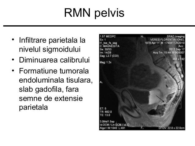 RMN pelvis • Infiltrare parietala la nivelul sigmoidului • Diminuarea calibrului • Formatiune tumorala endoluminala tisula...