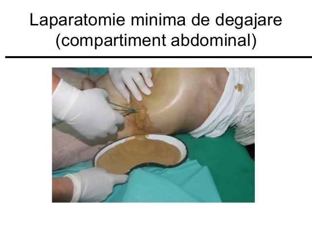 Laparatomie minima de degajare (compartiment abdominal)
