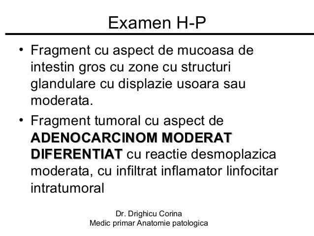 Examen H-P • Fragment cu aspect de mucoasa de intestin gros cu zone cu structuri glandulare cu displazie usoara sau modera...