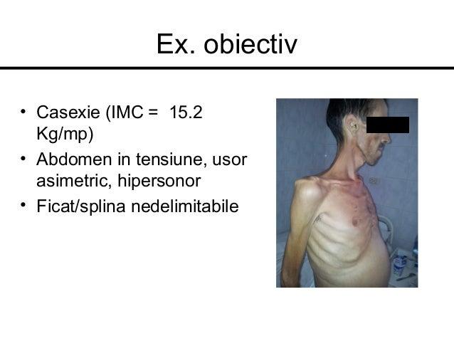Ex. obiectiv • Casexie (IMC = 15.2 Kg/mp) • Abdomen in tensiune, usor asimetric, hipersonor • Ficat/splina nedelimitabile