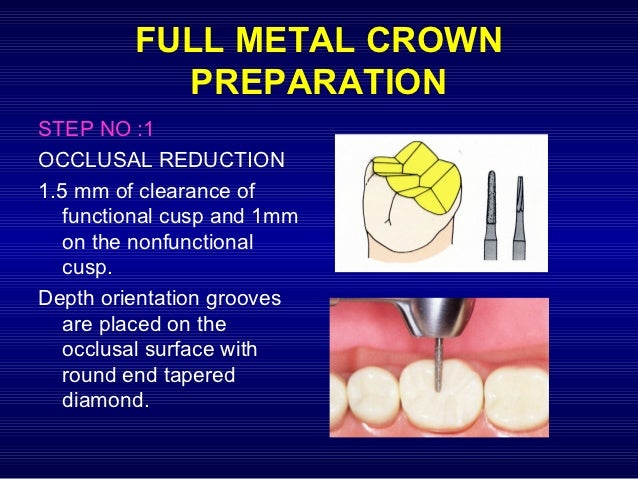 metal ceramic crown preparation pdf