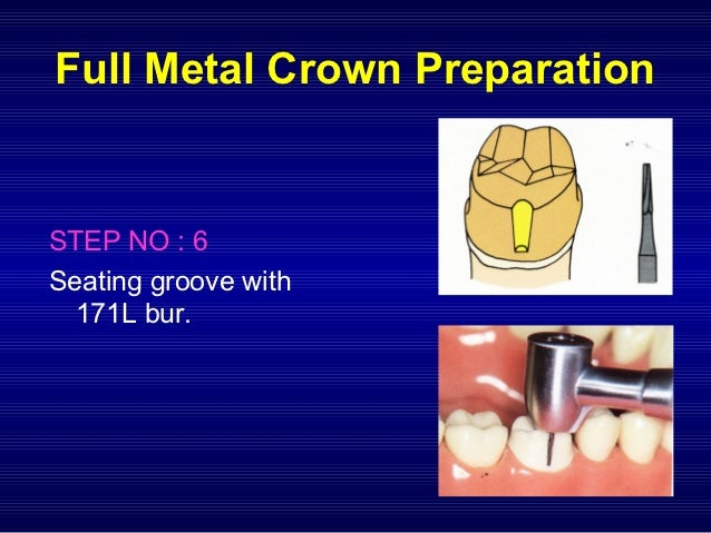 Prin Of Tooth Prep