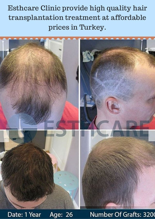 Searching For The Best Hair Transplant Clinic In Turkey