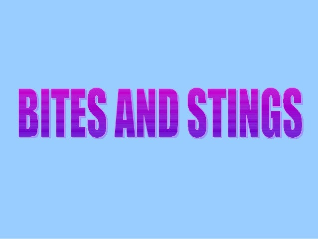 BITES AND STINGS Bites and stings are potentially dangerous because: The venom injected is poisonous. Casualty is allergic...