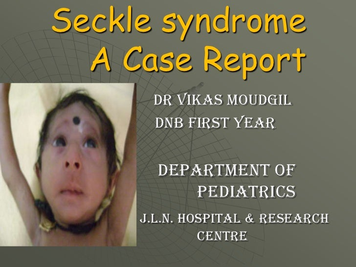 Seckle syndrome  A Case Report      dr vikas moudgil      DNB FIRST YEAR       Department of           pediatrics     J.L....