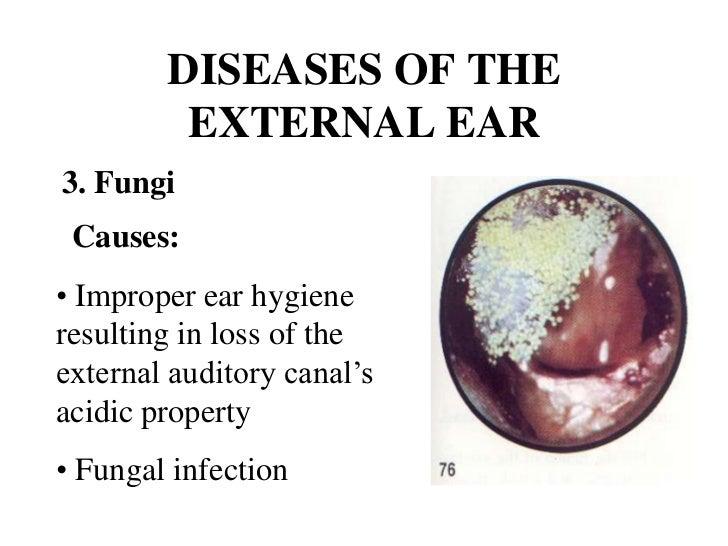 Common Ear Diseases