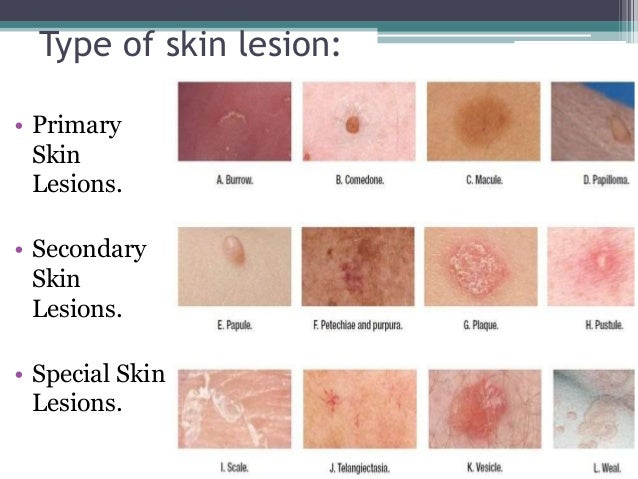 Secondary skin lesions