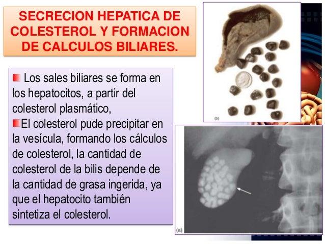 FORMACION DE LOS CALCULOS BILIARES