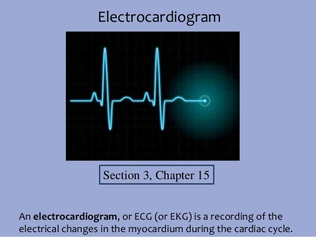 Electrocardiogram  Section 3, Chapter 15 An electrocardiogram, or ECG (or EKG) is a recording of the electrical changes in...