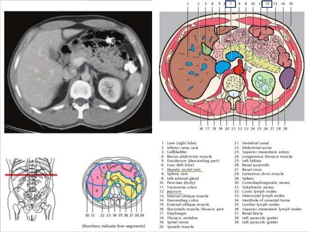 Sectional anatomy of abdomen 11 ccuart Choice Image