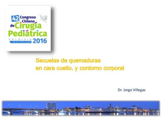 Secuelas de quemaduras en cara cuello, y contorno corporal Dr. Jorge Villegas