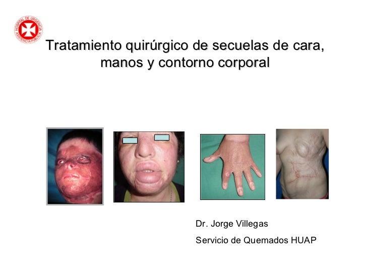 Tratamiento quirúrgico de secuelas de cara, manos y contorno corporal Dr. Jorge Villegas Servicio de Quemados HUAP