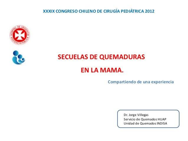 XXXIX CONGRESO CHILENO DE CIRUGÍA PEDIÁTRICA 2012      SECUELAS DE QUEMADURAS                EN LA MAMA.                  ...