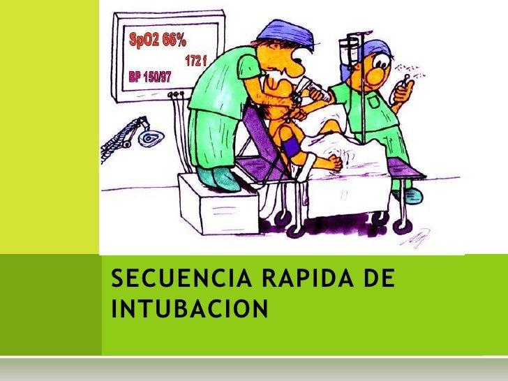 SECUENCIA RAPIDA DE INTUBACION<br />