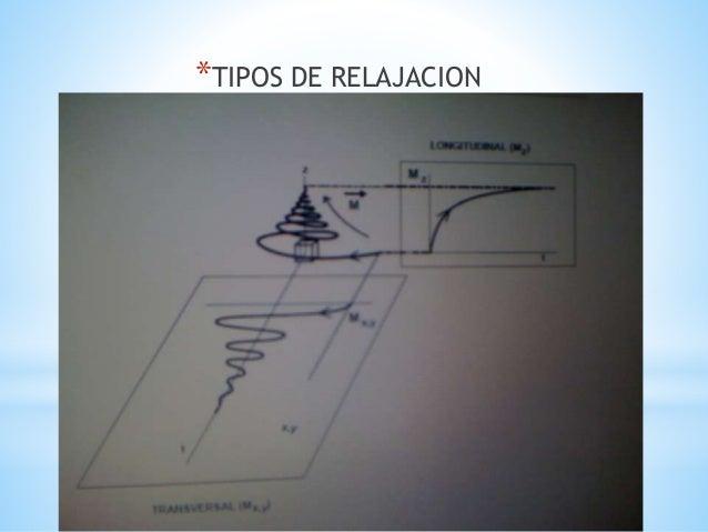 Secuencias t1 y t2