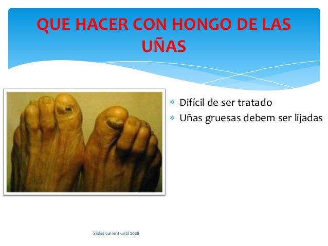 Duele el pulgar en el pie bajo la uña como curar