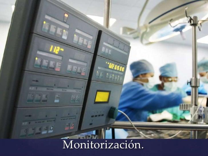 Monitorización.