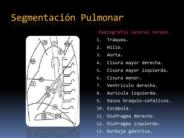 Segmentación Pulmonar
