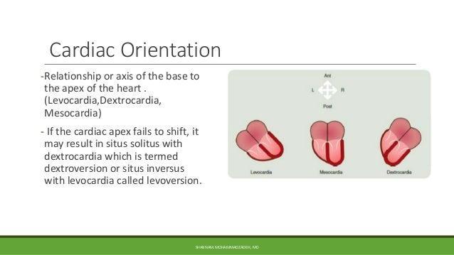 MVD (Heart Disease) Part 2