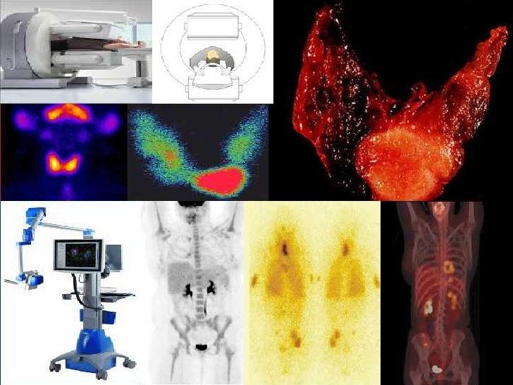 Seguimiento en cancer de tiroides