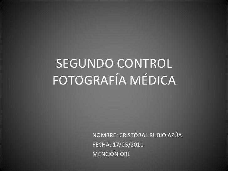 SEGUNDO CONTROL FOTOGRAFÍA MÉDICA NOMBRE: CRISTÓBAL RUBIO AZÚA  FECHA: 17/05/2011 MENCIÓN ORL
