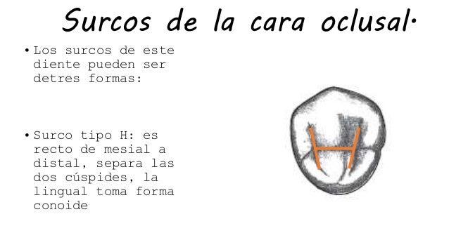 De La Cara Oclusal De - Absolute Hotties