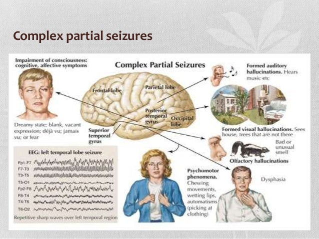 seizure disorders Seizure disorders may be classified by the part of the brain they affect and the kinds of symptoms they cause one way to categorize into two important groups is.