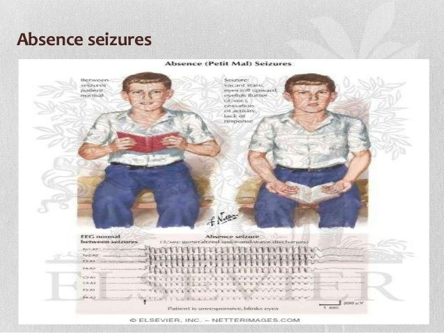 2 seizures 10 years apart dating 9