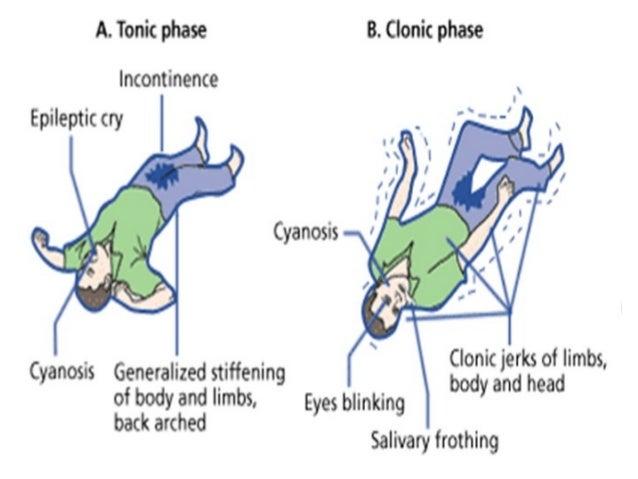 seizures disorder, Skeleton