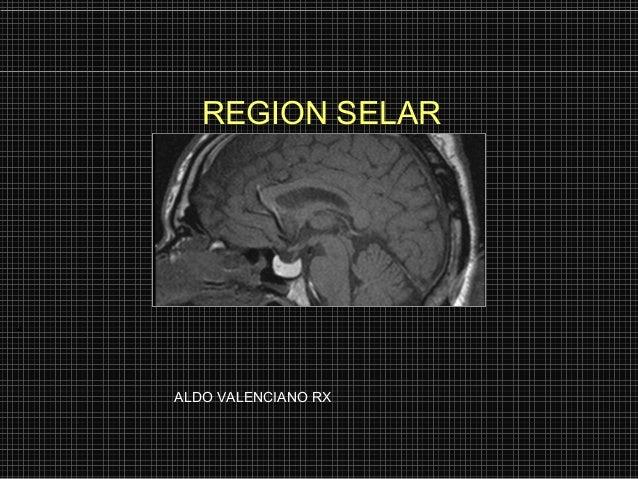 REGION SELARALDO VALENCIANO RX