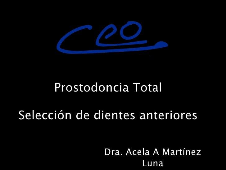 !          Prostodoncia Total  Selección de dientes anteriores                Dra. Acela A Martínez                       ...