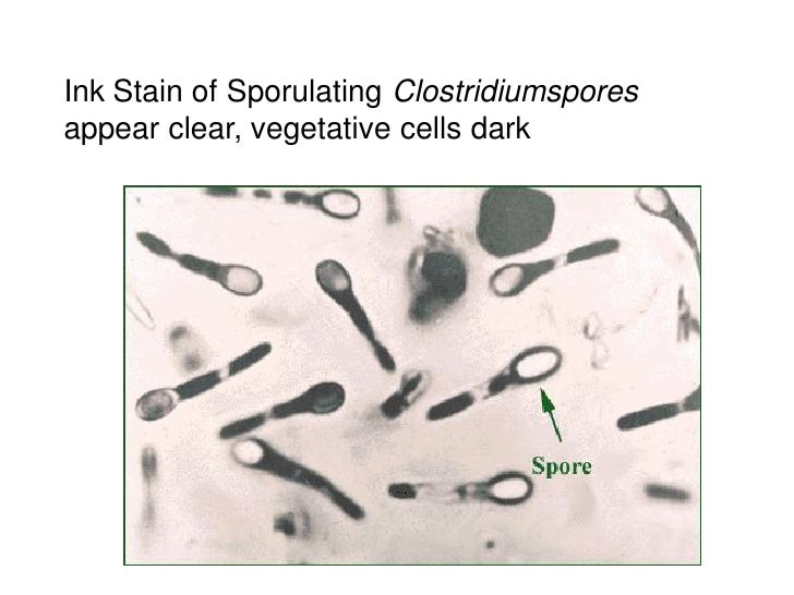 Ink Stain of Sporulating Clostridiumsporesappear clear, vegetative cells dark