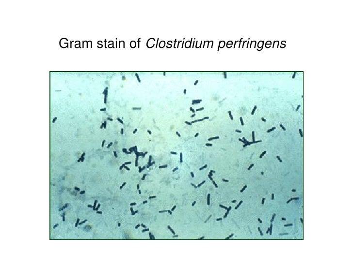 Gram stain of Clostridium perfringens